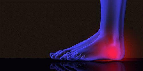 Мазь от боли в суставах ног — описание действенных средств
