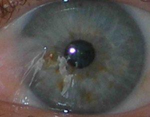 Мерцание и вспышки в глазах при шейном остеохондрозе