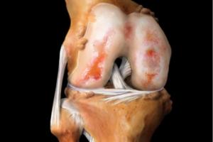 Методы лечения артроза колена в домашних условиях