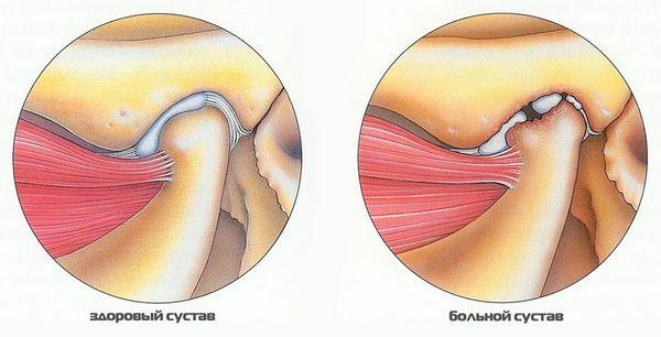 Вывих челюсти что делать симптомы и лечение вывиха и подвывиха