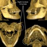 Анкилоз суставов — причины, симптомы, лечение и последствия