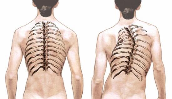 Кифоз грудного отдела позвоночника: причины и лечение