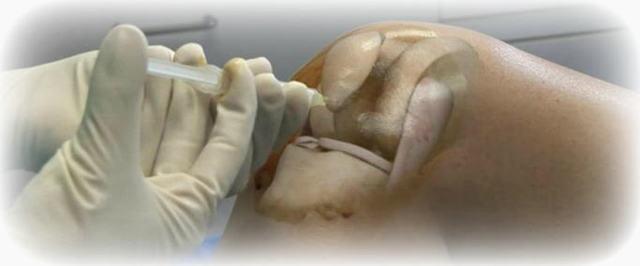 Жидкое протезирование суставов