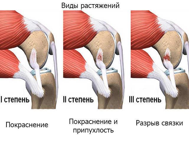 Растяжение связок на ноге: причины, лечение, симптомы