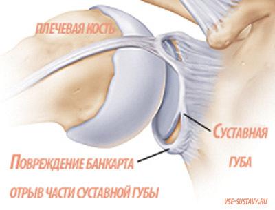 Повреждение Банкарта: симптомы, лечение, диагностика
