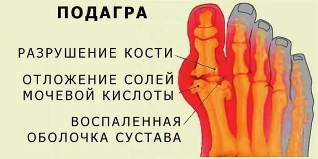 Диета при подагре на ногах: разрешенное и запрещенное меню