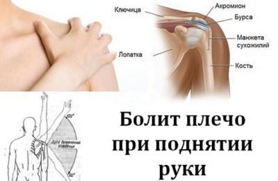 Плексит плечевого сустава: причины, симптомы и лечение