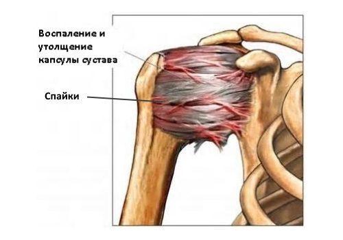 Адгезивный капсулит плеча: симптомы, стадии и лечение