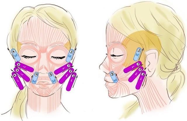 Тейпирование шеи — правила применения и отзывы о результатах