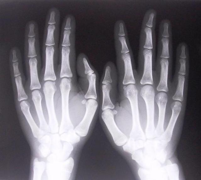Рентген кисти руки: показания, проведение и результаты