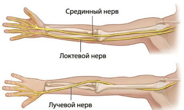 Неврит локтевого нерва: причины, симптомы и лечение