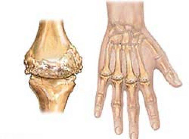 Ревматоидный артрит: симптомы, лечение и диагностика