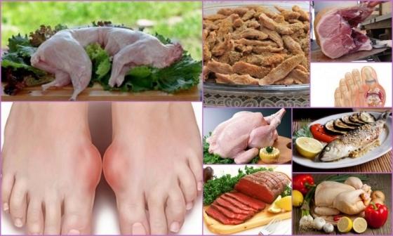 Едим мясо при подагре без вреда для здоровья