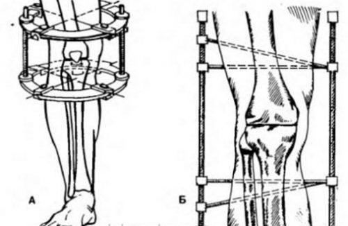 Артродез - виды, показания, проведение и реабилитация