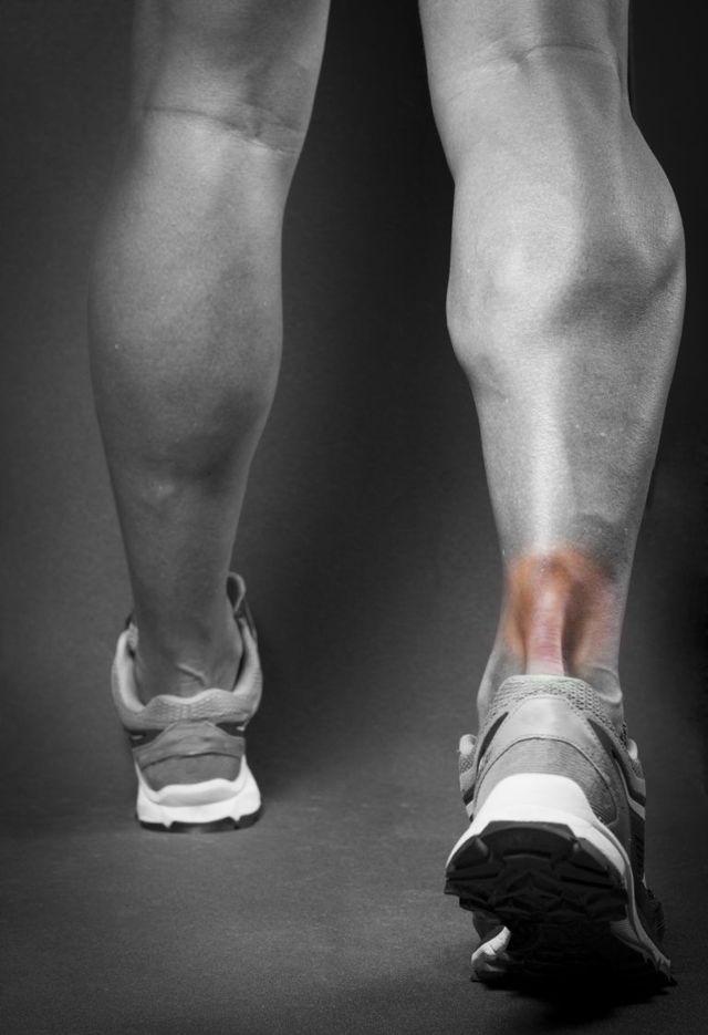Тендинит стопы: симптомы, фото и лечение связок сустава