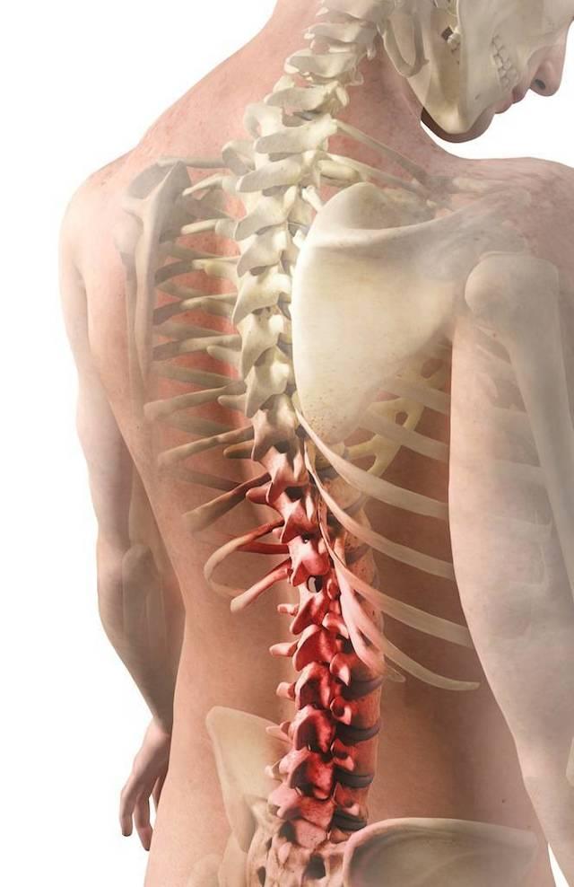 Рентген шейного отдела позвоночника: что показывает