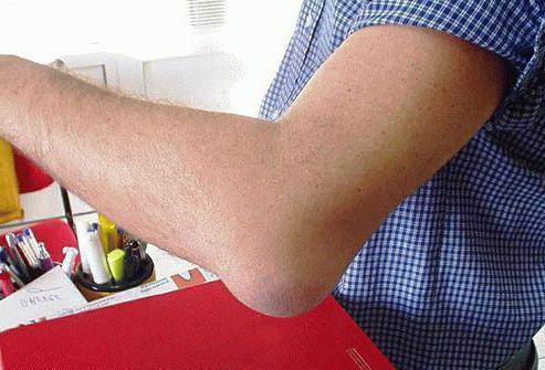 Синовит локтевого сустава: симптомы, лечение и фото