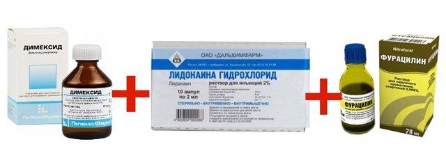 Пяточная шпора: лечение димексидом в домашних условиях