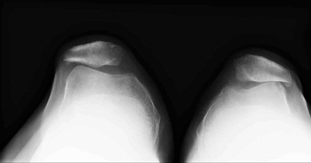 Что такое пателлофеморальный артроз и как его лечить