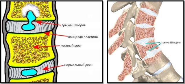 Грыжа Шморля: описание и виды болезни
