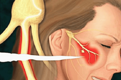 Защемление тройничного нерва — признаки, лечение