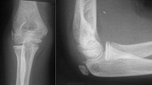 Рентген локтевого сустава: показания и проведение