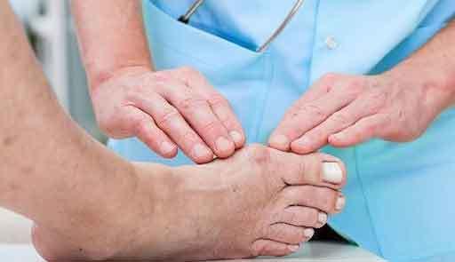 Мази от подагры на ногах: обзор эффективных