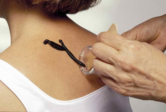 Пиявки при остеохондрозе шейного отдела — особенности процедуры