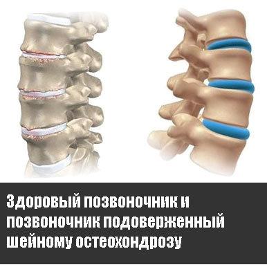 Аппликатор Кузнецова при остеохондрозе шейного отдела