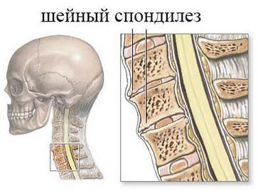 Деформирующий спондилез шейного отдела позвоночника - подробно о болезни