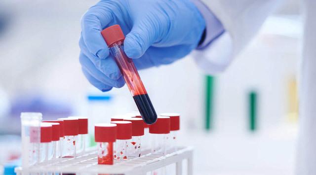 Остеокальцин — норма в крови, причины отклонения
