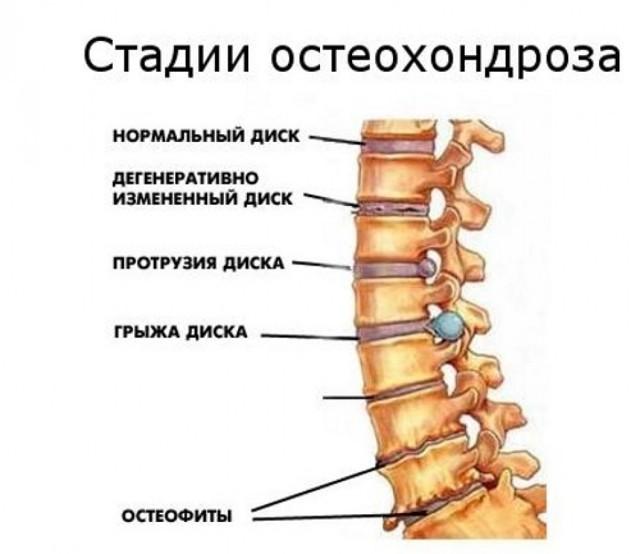 Валик при остеохондрозе под спину и шею - особенности применения