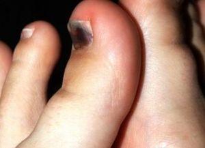 Ушиб пальца на ноге: симптомы, первая помощь, лечение