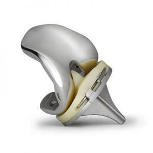 Эндопротез коленного сустава: виды, цена, срок службы