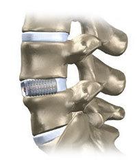 Задний и передний спондилодез: операция и реабилитация
