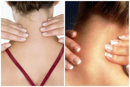 Как убрать шишку на шее сзади