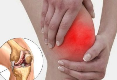 Каштан для суставов — эффективные способы лечения