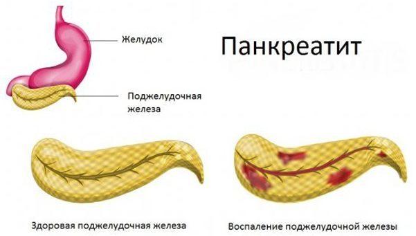 Болит левый бок со спины: причины, возможные заболевания