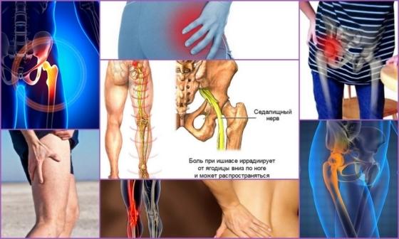 Боль в тазобедренном суставе, отдающая в ногу и ягодицу