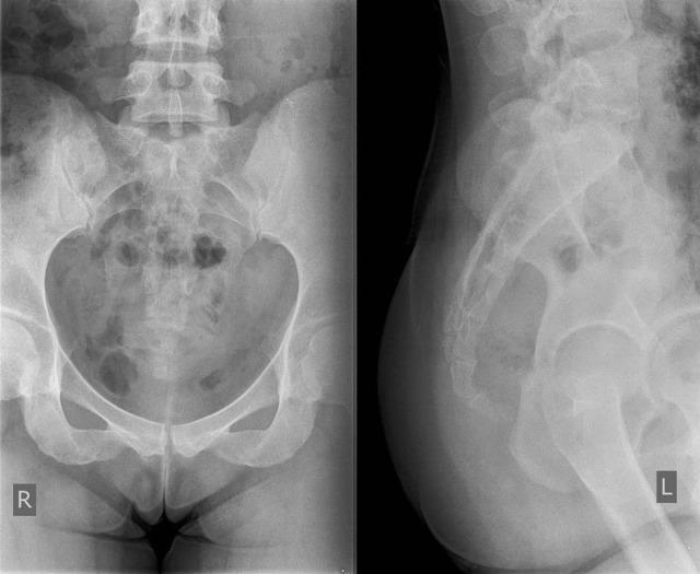 Рентген копчика — показания, подготовка и проведение