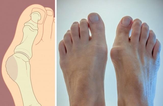 Удаление косточки на большом пальце ноги: операция и реабилитация