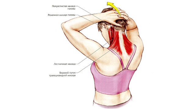 Растяжение мышц шеи: симптомы, лечение и диагностика
