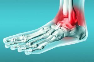 Операция при переломе лодыжки: показания, восстановление