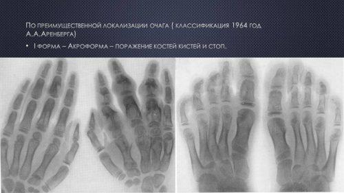 Болезнь Олье: стадии, симптомы и методы лечения