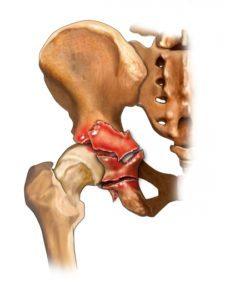 Перелом вертлужной впадины: виды, симптомы, лечение и реабилитация