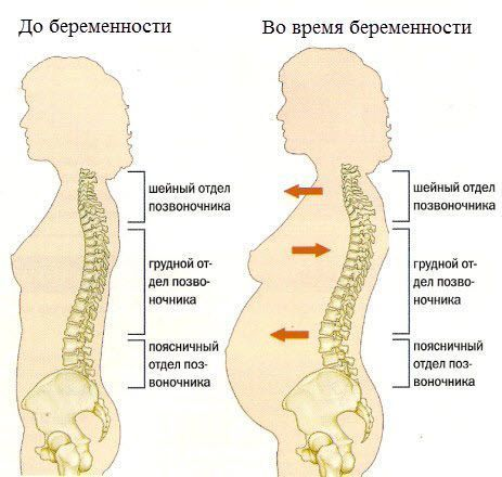 Болят кости таза после родов — что делать и как лечить