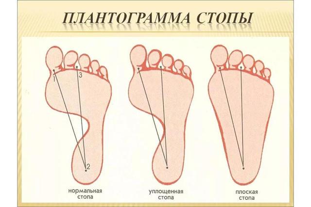 Плоскостопие у детей: причины, лечение, симптомы