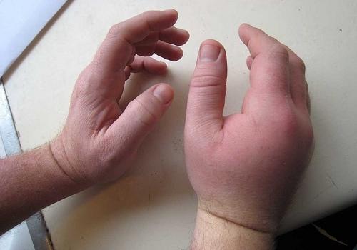 Ушиб руки: что делать, первая помощь, лечение
