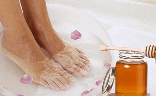 Лечение косточки на ноге у большого пальца без операции
