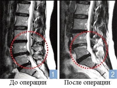Удаление грыжи позвоночника способы осложнения реабилитация